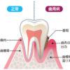 歯周病と長寿には関係があるのか?