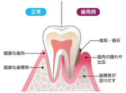 歯周病と死亡率